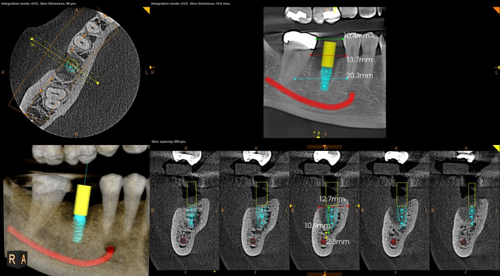 Digitale workflow: cbct