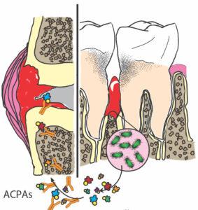 Parodontitis en rheuma