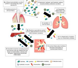 Parodontitis en longen