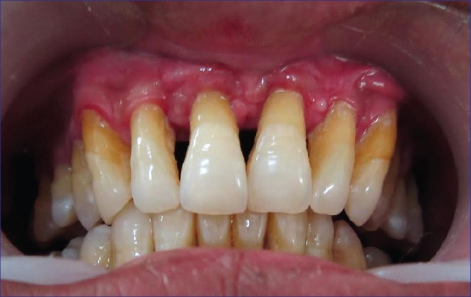 uitgezakte tanden