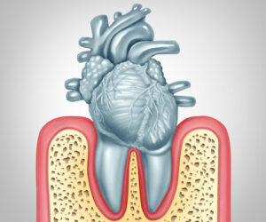 Parodontitis en het hart