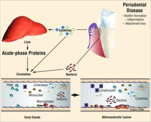 Parodontitis en artherosclerose