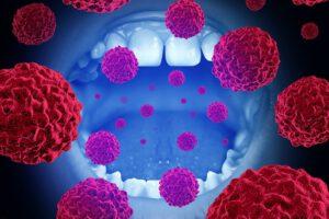 Parodontitis en kanker