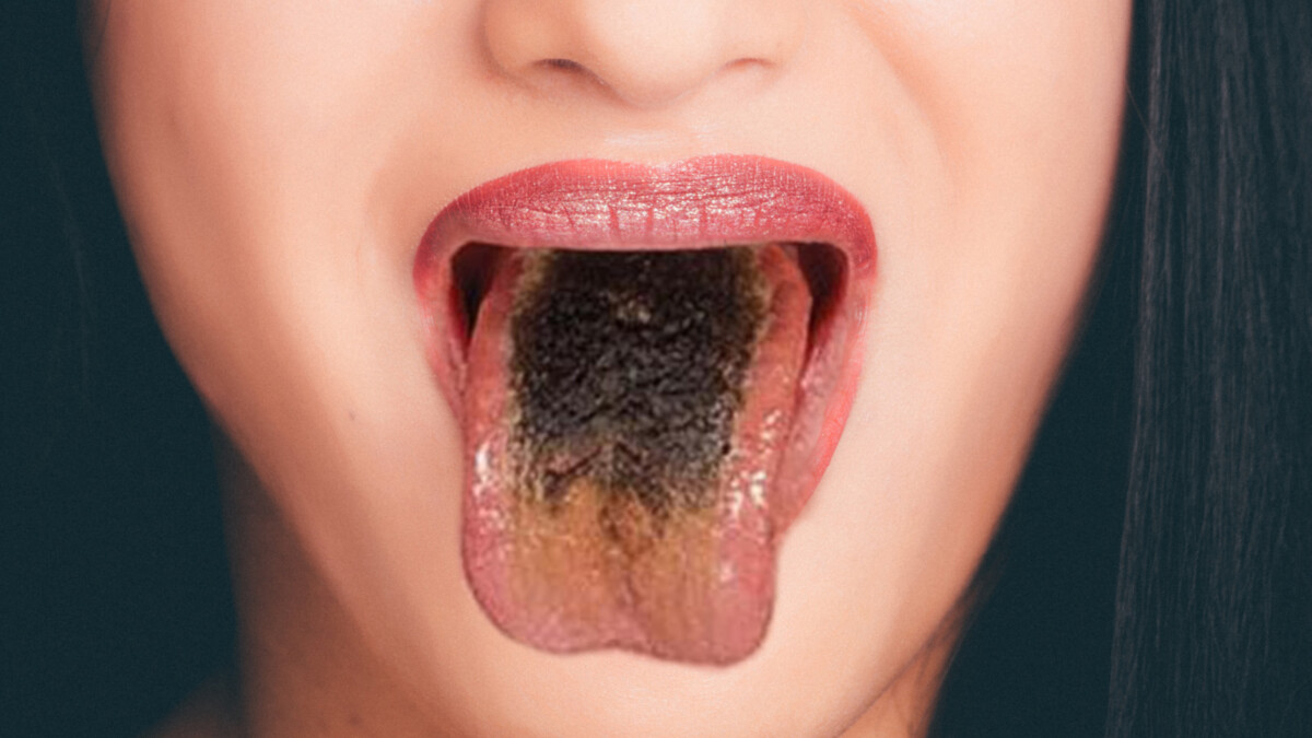 Tongue coating